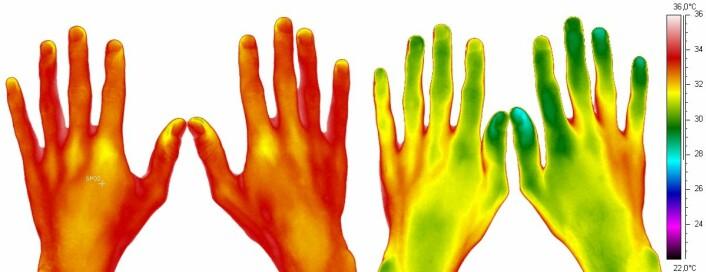 Termiske bilder av hendene til en snuser. Til venstre: Før plassering av to snusporsjoner (16 milligram nikotin) under leppa. Til høyre: 30 minutter etter at snusdosene er plassert. Temperaturskala til høyre. (Foto: (Illustrasjon: Ina Isabella Høiland, UiT))
