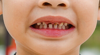 Tyggis kan redde britiske tenner til en verdi av over 100 millioner kroner
