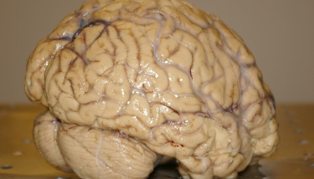 A human brain photographed at the University of Oslo (Photo: Bjørnar Kjensli)