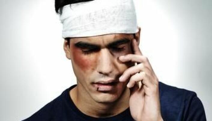 Head injury can cause mental illness
