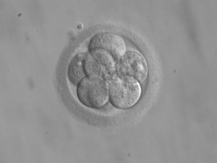 Bildet viser et embryo på bare åtte celler. I år forsøkte kinesiske forskere å endre genene hos ikke-levedyktige embryo ved å ta i bruk den omstridte CRISPR-teknologien.  (Foto: RWJMS IVF program/ekem/wikimedia commons.)