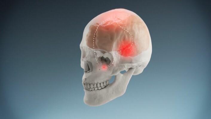 Under et migreneanfall oppstår en refleksbue der nerveknuten sphenopalatin ganglion, SPG og flere deler av hjernen er involvert. (Foto: Grafikk: Mograf.)