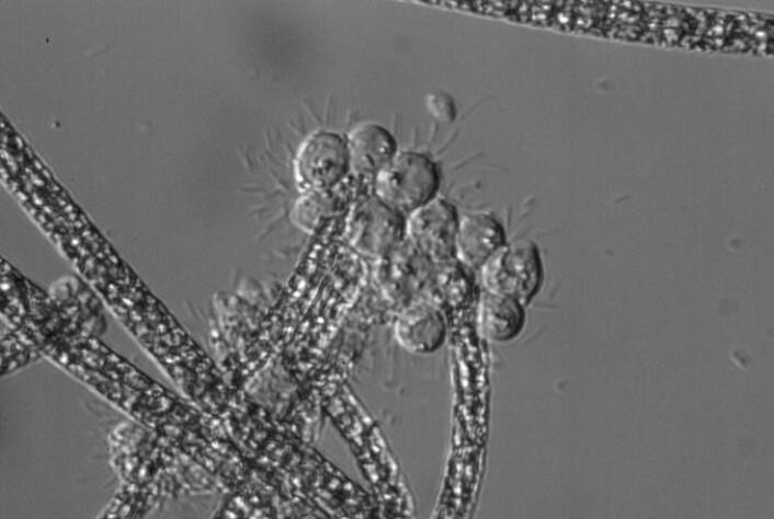 Bilde 2: Mikroskopisk bilde av Planktothrix (trådformete kolonier) og parasittene (store, runde strukturer ved endene av Planktothrix tråder).  (Foto: Jørn Henrik Sønstebø)