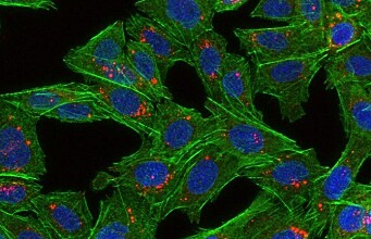 Killing cancer cells with super glue