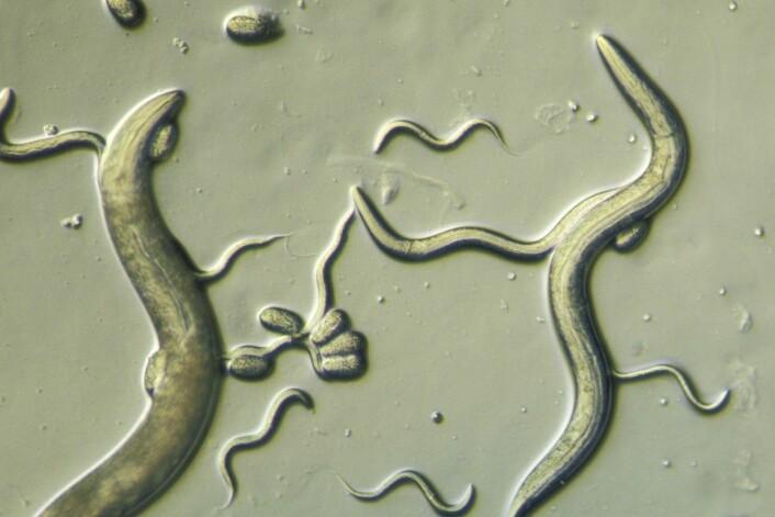 Ormen C.elegans er nyttig for forskere fordi mitokondriene likner på menneskets.  (Foto: Carolina Biological, Corbis, NTB scanpix)