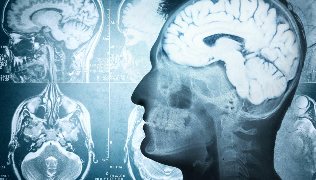 Kan vi bruke selvoppløselige sensorer i hjernen om ikke så altfor lenge? (Foto: Shutterstock/NTB Scanpix)