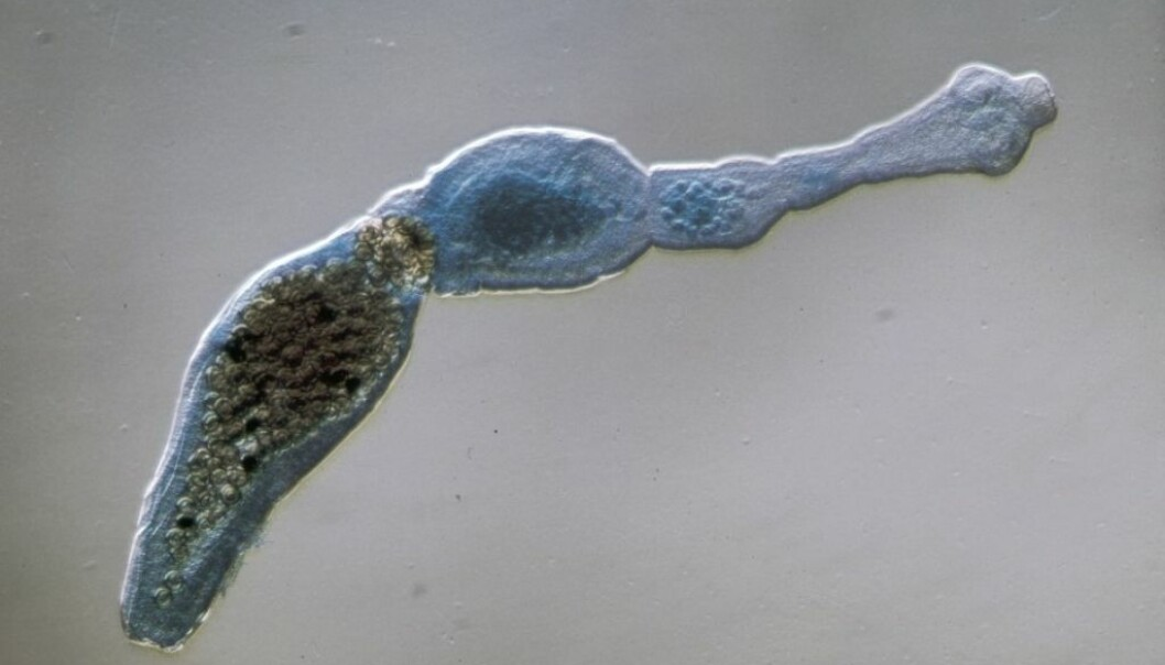 The dwarf tapeworm is the third most prevalent parasite in the world infecting humans via the food chain. (Photo: Scanpix/Science Photo Library)