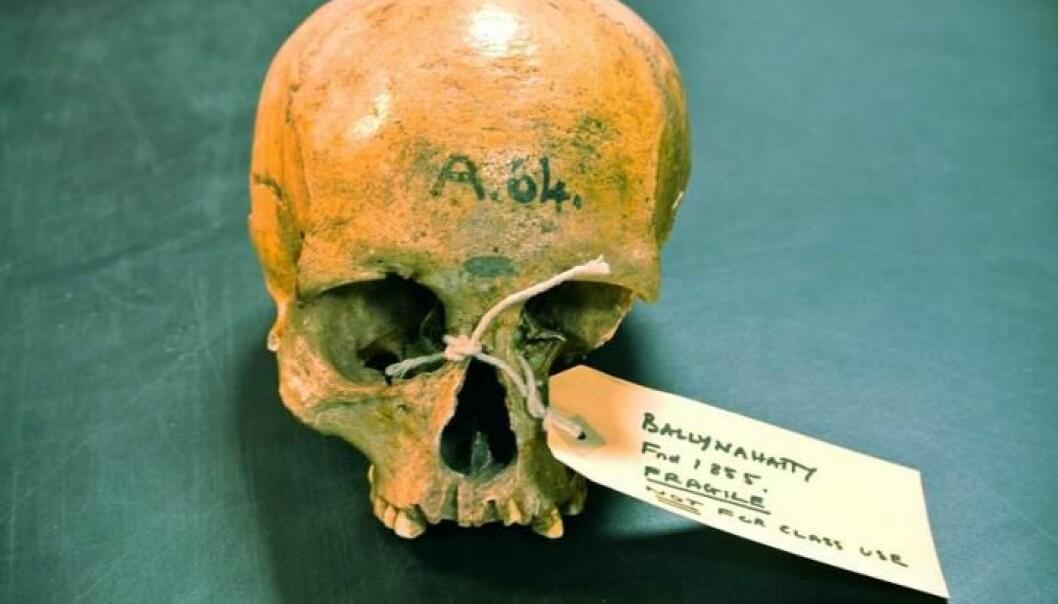 Hodeskallen til en 5200 år gammel kvinne som skal ha levd i Belfast-området i Irland. (Foto: Daniel Bradley, Trinity College Dublin)