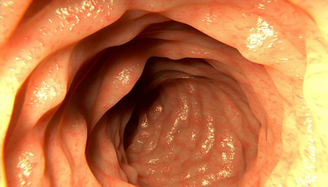 Frisk tarm: Når legen undersøker tarmen til mennesker med IBS, framstår den ofte som normal. Men undersøkelser peker mot at fordøyelsessystemet til IBS-pasientene likevel ikke fungerer som det skal.  (Illustrasjonsfoto: Juan Gaertner / Shutterstock / NTB scanpix)