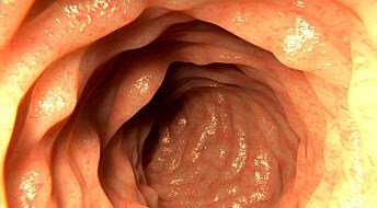 Mindre følsomme nerver hos de med irritabel tarm