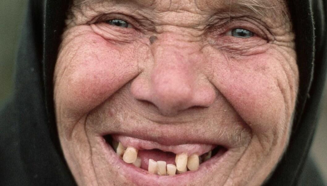 Verdens helseorganisasjon har som mål at eldre over 80 år i Europa skal ha beholdt 20 tenner. Dette er ikke oppfylt i mange land. Denne kvinnen fra Romania er en av dem som kanskje ikke har så mange tenner i behold.  (Foto: Barry Lewis, Corbis/scanpix)