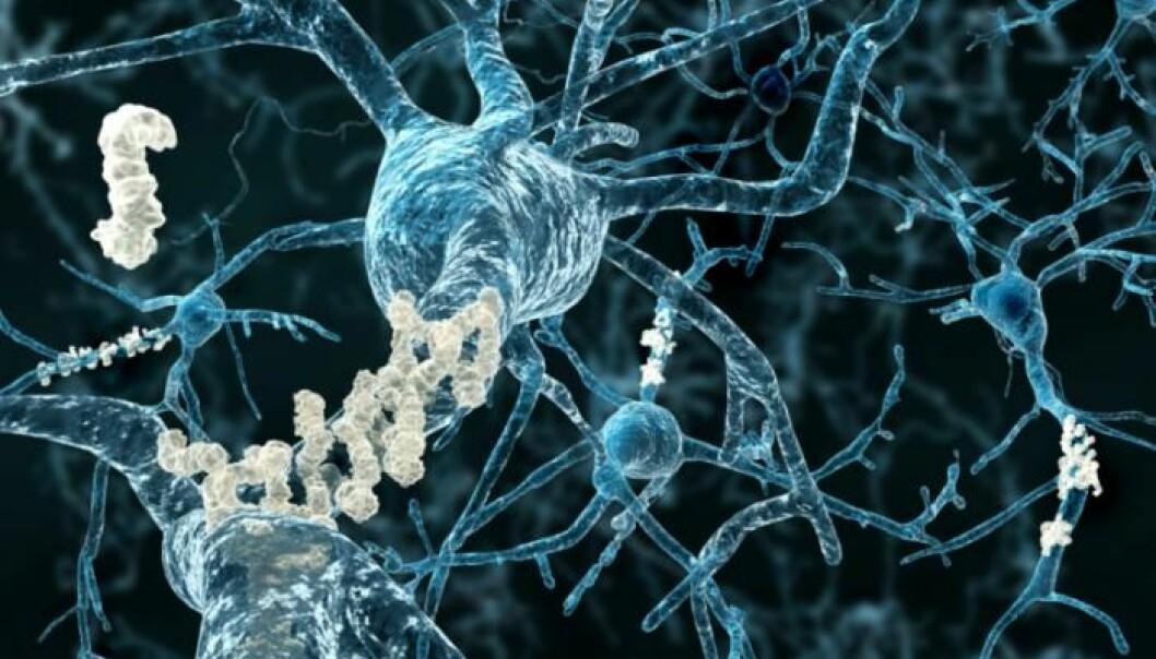 Alzheimers sykdom oppstår ved at et protein avleires som klebrige klumper i hjernen. Nå viser en studie at sakte gange kan være et tidlig tegn.  (Foto: Neurology)