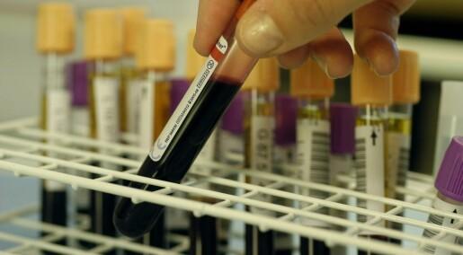 Blodprøve kan avsløre din biologiske alder