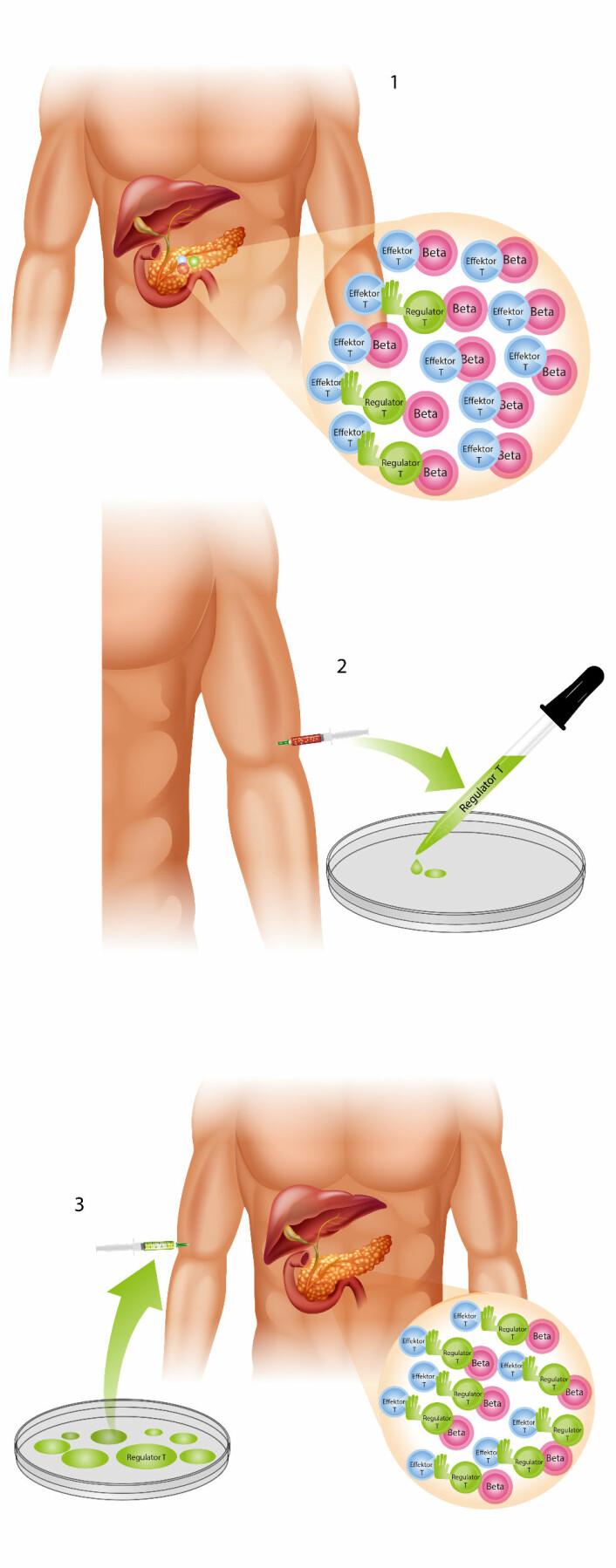 Illustrasjon 1 viser at regulatorcellene ikke er effektive nok. På illustrasjon 3 er de blitt dyrket opp og kan nå stanse T-cellene.  (Foto: (Illustrasjon: Mette Friis Mikkelsen) )