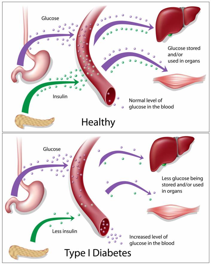 Når betacellene har blitt ødelagt, kan ikke kroppen overføre sukker fra blodet og til cellene.  (Foto: (Illustrasjon: Shutterstock))