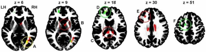 Forskerne fant signifikante forskjeller mellom høyrisikotakerne og lavrisikotakerne når det gjaldt tykkelsen i det nevrale nettverket. Og forskjellen var tydelig i seks ulike steder i hjernen. Disse er markert med sirkel. (Foto: (Illustrasjon: Sintef))