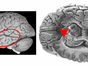 These two pictures show the human brain. The area that is called the amygdala is marked with a circle and arrow. Data from the amygdala is similar to what NTNU researchers have found in the moth's lateral horn. (Illustration: NTNU)
