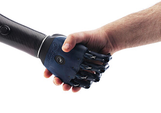 Smarter prostheses using iPhone technology