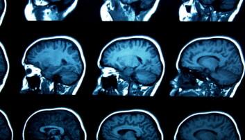 Nevropsykologi er den delen av det psykologifaget som tar for seg sammenhengene mellom hjerne og atferd. Det betyr at man med utgangspunkt i hjernen kan forutsi hvordan vi vil reagere på ulike situasjoner. (Illustrasjon: Microstock)