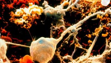 Bildet viser celler i hjernen. Nervecellene er de store som her er farget grå. Gliacellene har fått en oransj farge. Gliacellenes funskjon i hjerne har lenge vært undervurdert, men nå lurer forskerne på om de kan lage bedre epilepsimedisin ved å rettet behandlingen mot denne typen av celler også. (Illustrasjonsfoto: Science Photo Library)