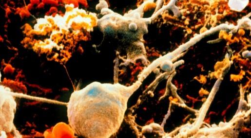 Undervurdert celle gir håp om ny epilepsibehandling