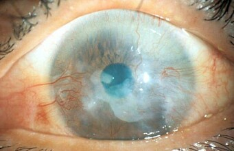 Using cells from the mouth to cure blindness