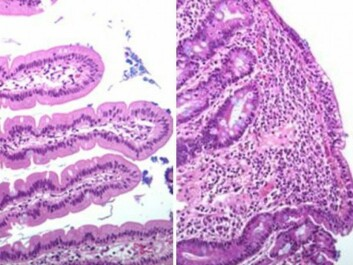 Left: Healthy duodenum. Right: Duodenum showing villi damaged by coeliac disease. (Photo: University of Oslo)