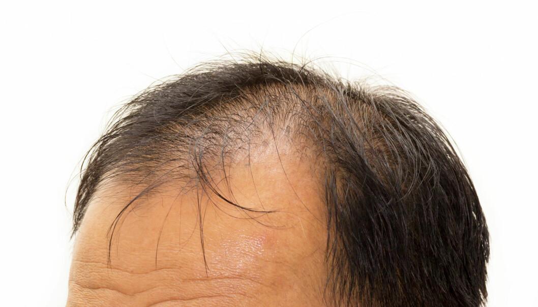 Mange menn opplever å bli litt tynnere i toppen med årene. Behandling finnes det derimot lite av per i dag. Kan kreftmedisin være løsningen?  (Illustrasjonsfoto: Microstock)