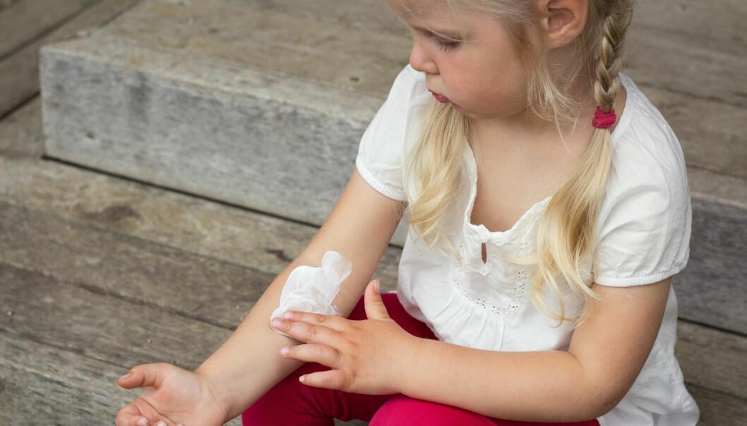 Forskere har funnet ut at eksem og en lang rekke andre folkesykdommer har samme genetiske årsaker. (Illustrasjonsfoto: Microstock)