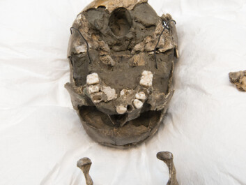 Viste Boy's jawbone and skull. (Photo: Terje Tveit, The Museum of Archaeology, University of Stavanger)