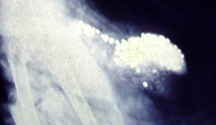 Funn av blyhagl i magen på svaner var en av årsakene til at blyhagl ble forbudt på våtmark allerede i 1991. Her er blyhagl røntgenfotografert i kråsen til en svane i Frankrike. (Foto: Lamiot, Wikimedia Commons, Creative Commons Attribution-Share Alike 3.0 Unported licence)