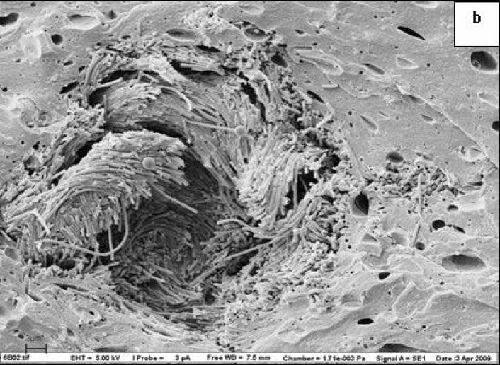Forlengede bakterier orientert rundt en fettkule i ost. Fettet er fjernet. (Foto: Martinovic et al.)