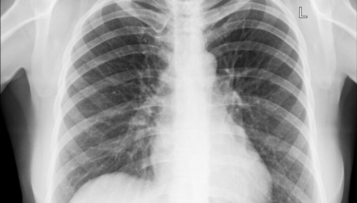 Children born in winter have vulnerable lungs