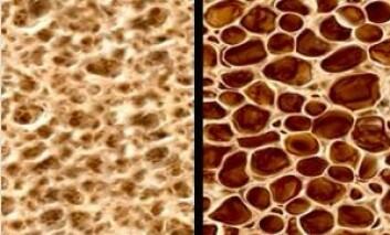 Bildet viser normalt beinvev og beinvev med osteoporose.  (Foto: Foto fra CCM Melbourne))