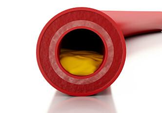 Dissolving cholesterol crystals may help treat heart disease