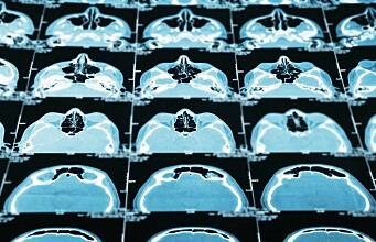 Children exposed to adult radiation levels from CT scans
