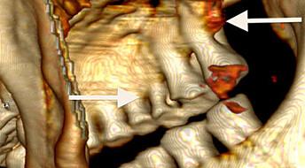 Ismannen Ötzi hadde dårlige tenner