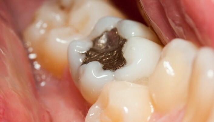 Are mercury dental fillings really that dangerous?