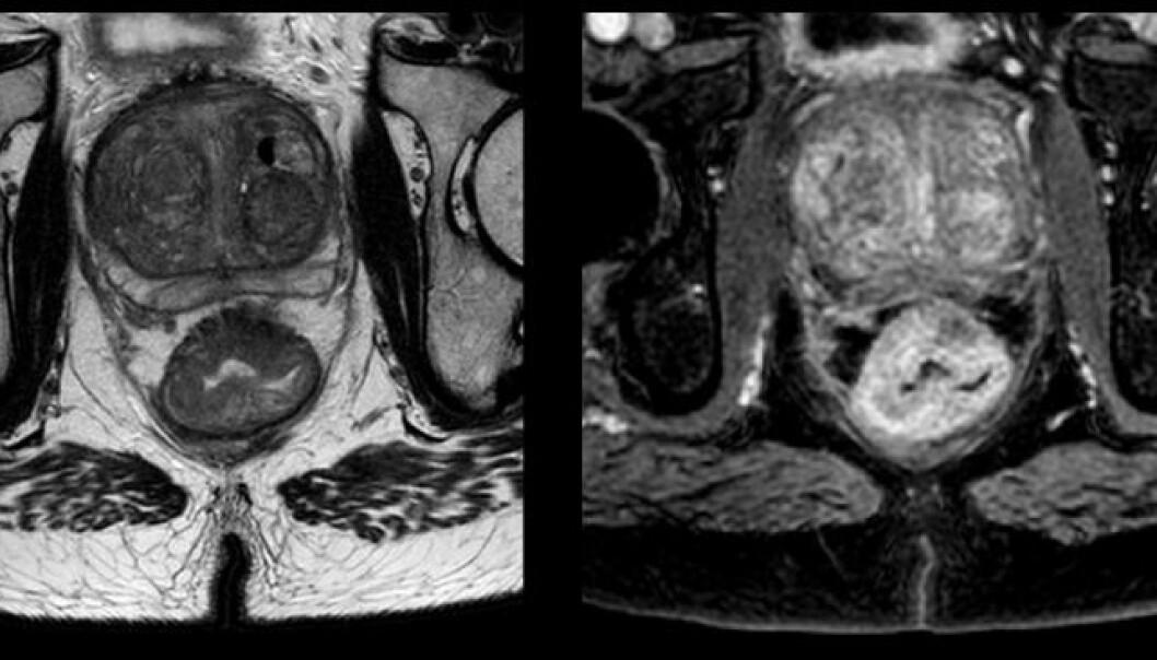 """Bildet viser en pasient med tarmkreft som er med på studien. Nederst på bildet er rompeballene, mens klumpen rett over rumpa er en kreftsvulst i endetarmen. Forskerne håper de kan gi bedre behandling ved å kunne """"kikke"""" inn i svulsten. (Foto: OxyTarget-studien)"""