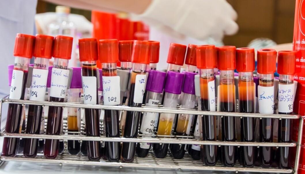 Alle med høyt kolesterol eller hjertesykdom i familien oppfordres til å måle kolesterolet og eventuelt en gentest for å påvise at kolesterolnivået er arvelig.  (Illustrasjonsfoto: Colourbox.)