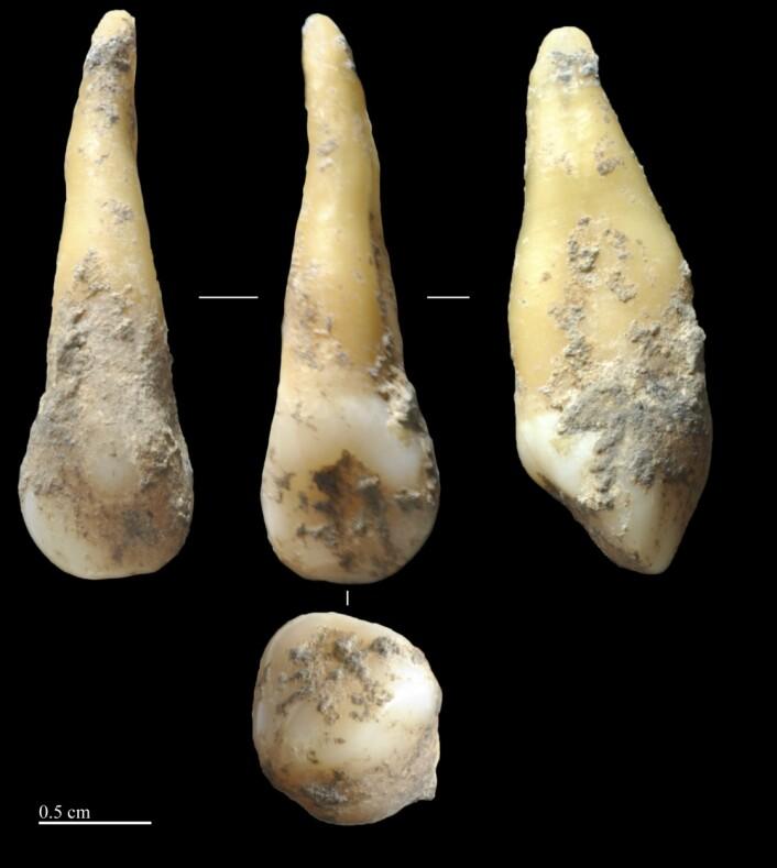 Forskerne analyserte DNA fra forhistoriske mennesketenner funnet under arkeologiske utgravinger. Disse 7400 år gamle tennene ble funnet i Vallirana nær Barcelona. (Foto: Joan Daura/Montserrat Sanz)