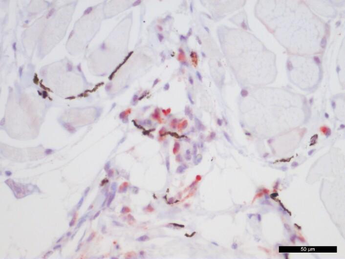 Mikroskopisk bilde fra melaninflekk. Røde celler viser tilstedeværelse av virus og mørke celler er melananomakrofager som gir opphav til den mørke misfargingen i fileten. (Foto: (Bilde: NMBU))