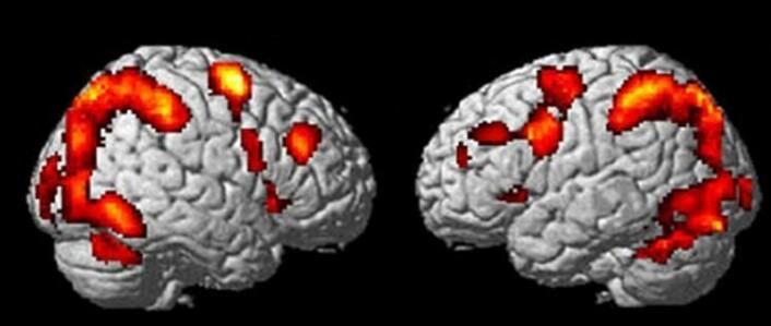 Dette nettverket kjenneteiknar alle hjernar som tenker. Biletet viser resultatet av ein hjerneskanning. (Foto: Kenneth Hugdahl)