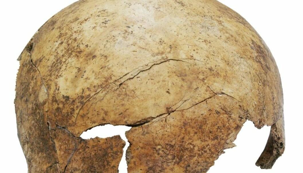 Blant funnene i massegraven er denne hodeskallen med tydelige skader. Den tilhørte en åtteåring. (Foto: Christian Meyer)