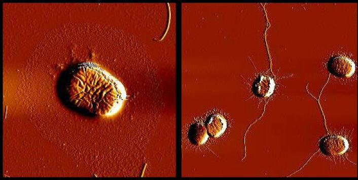 E. coli-bakterien har gener som koder for trådlignende strukturer. Disse trådene gjør det enklere for bakterien å feste seg til overflater. Genene må være aktive for at bakteriene skal lage disse trådene, og de blir aktive gjennom at de kommuniserer. Det Tiofenon gjør er å forstyrre kommunikasjonen. Slik hindrer de at genene blir aktivert, og dermed blir heller ikke trådene produsert. E. coli får da vanskeligere for å feste seg og danne biofilm. Til venstre ser vi en E. coli- bakterie som har blitt tilført Tiofenon. Som vi ser mangler det en trådlignende struktur. Til sammenligning ser vi på bildet til høyre bakterier som ikke er behandlet med Tiofenon, og har produsert vanlige tråder. (Foto: Ida Hegna, Farmasøytisk instiutt, UiO)
