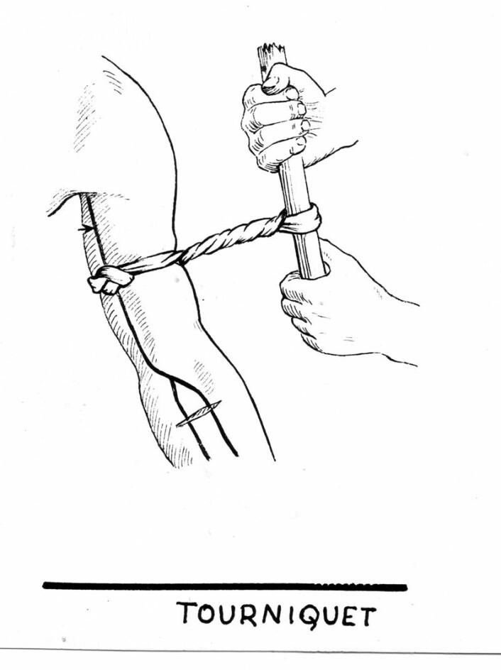 En gammeldags tourniquet. Et pinne brukes for å stramme båndet rundt armen. (Foto: (Illustrasjon: Pearson Scott Foresman-arkivene))
