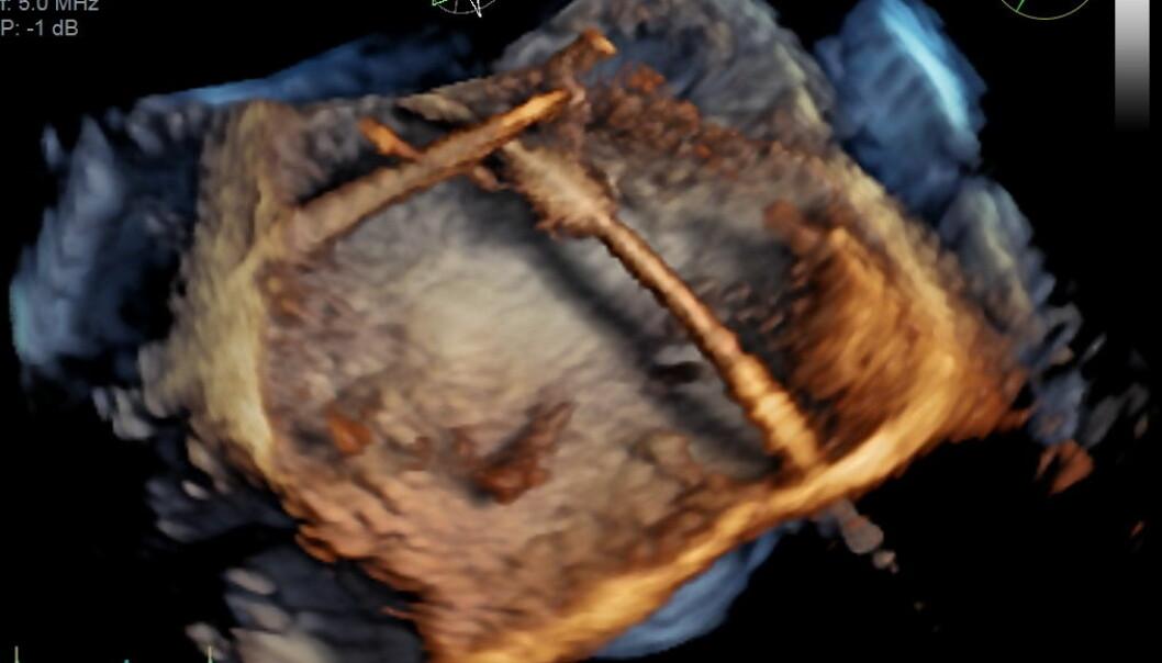 3D-bilder tatt med spiserørssonde kan brukes for eksempel under kirurgiske inngrep i hjertet, som på dette bildet. Strukturen som du ser midt i bildet, skal festes i hjertet til en pasient.  (Illustrasjon: GE Vingmed Ultrasound)
