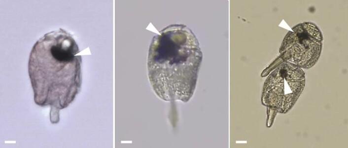 Her ser du bilder av hele plantonet. Den mørke flekken er deler av øyet.  (Foto: Greg Gavelis)