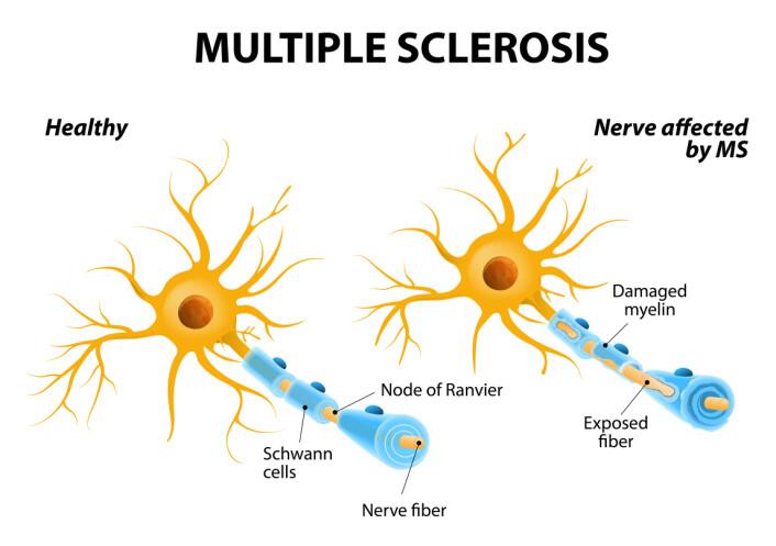 De trådene som forbinder beskjeder fra celle til celle, beskyttes av noe som kalles myelin. Dette laget blir etter hvert ødelagt når man har sklerose.  (Foto: Microstock)