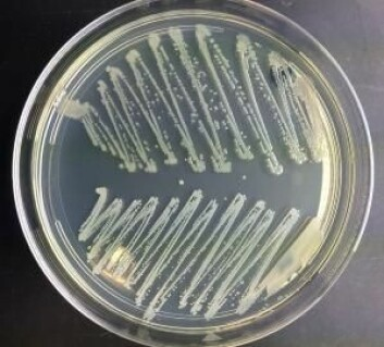 Bakterier fra nesen. Øverst er det koli-bakterier, nederst stafylokokker.  (Foto: Sally Statham, TG-en)
